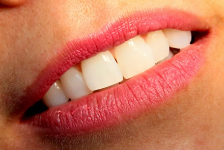 Dental teeth whitening and veneers Costa del Sol, Swedish dentists, fuengirola, mijas costa, riviera del sol